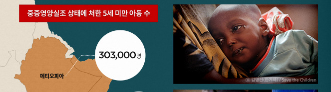 중증영양실조 상태에 처한 5세 미안 아동수 에티오피아 : 303,000명 ⓒ김영진(한겨레)/Save the Children