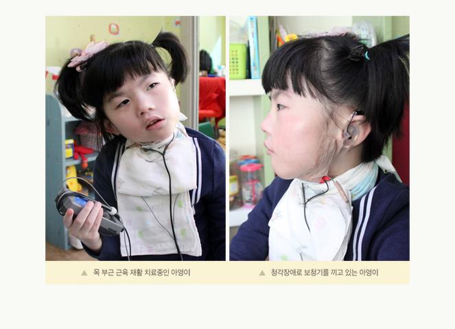 (사진) 목 부근 근육 재활 치료중인 아영이 / 청각장애로 보청기를 끼고 있는 아영이