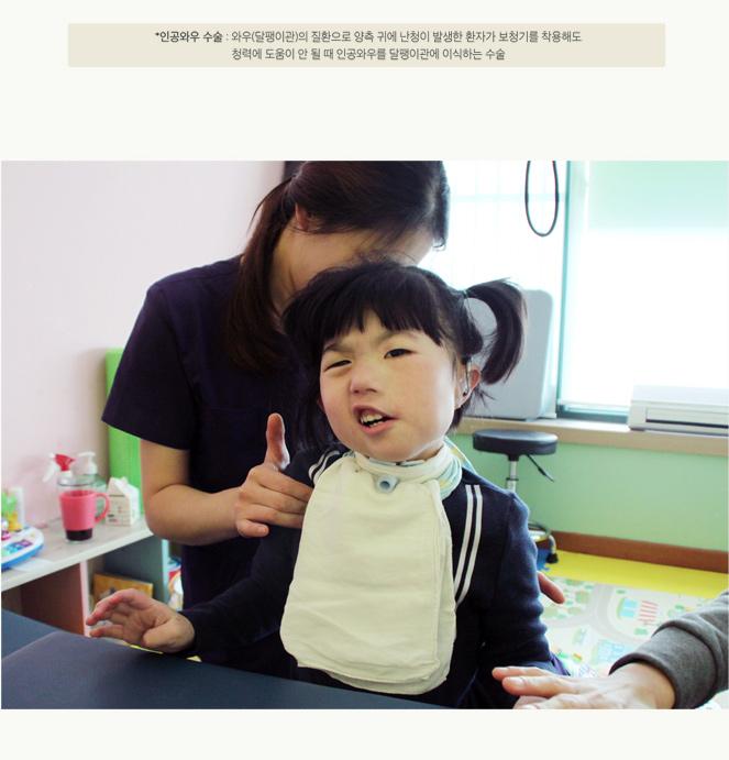 *인공와우 수술 : 와우(달팽이관)의 질환으로 양측 귀에 난청이 발생한 환자가 보청기를 착용해도 청력에 도움이 안 될 때 인공와우를 달팽이관에 이식하는 수술