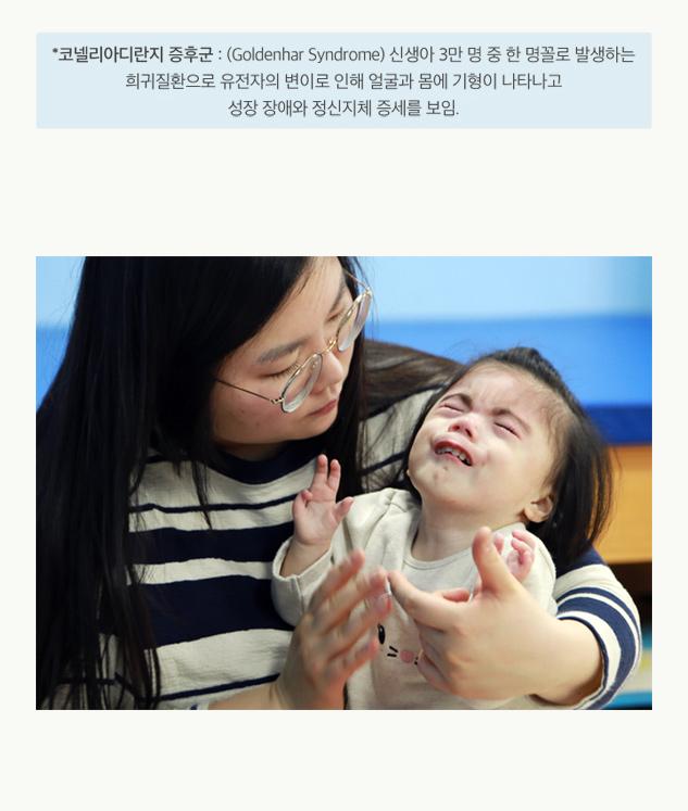 *코넬리아디란지 증후군 : (Goldenhar Syndrome)신생사 3만 명 중 한 명꼴로 발생하는 희귀질환으로 유전자의 변이로 인해 얼굴과 몸에 기형이 나타나고 성장 장애와 정신지체 증세를 보임.