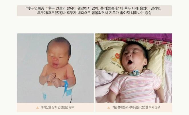 *후두연화증:후두 연골의 발육이 완전하지 않아, 흡기(들숨)할 때 후두 내에 음압이 걸리면, 후두개(후두덮개)나 후두가 내측으로 함몰되면서 기도가 좁아져 나타나는 증상 (사진)태어났을 당시 건강했던 정우 / 기관절개술로 목에 관을 삽입한 아기 정우